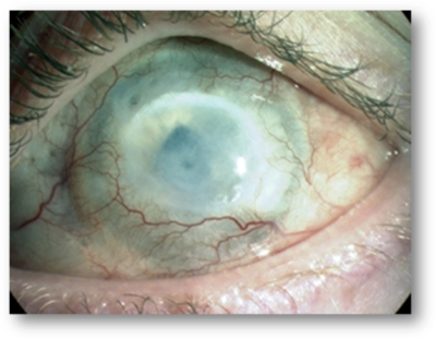 CORNEA INJURED BY CHEMICAL BURNT WHICH HAS DEVELOPED OPACITY AND NEOVASCULARISATION. AUTHOR: SECKER, G.A., AND DANIELS, J.T.