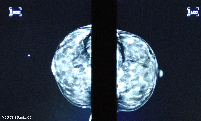 cancer aggressive form biodescodificacion cancer de prostata