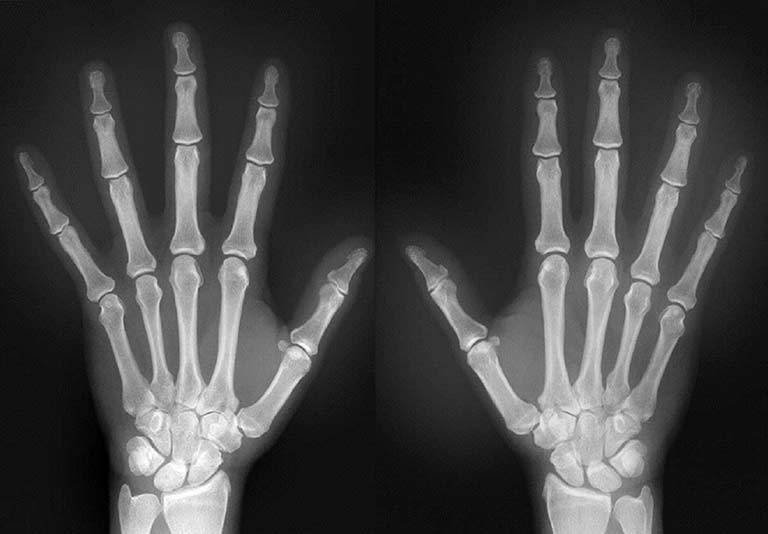 Gene regulating damage caused by rheumatoid arthritis ...